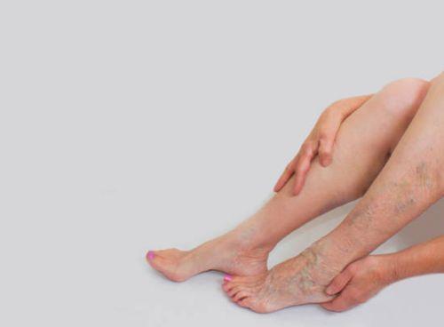 cómo ayuda la presoterapia a las varices