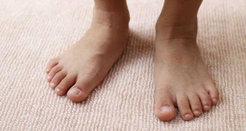 Cómo afectan los Qué son los pies planos o arcos vencidos