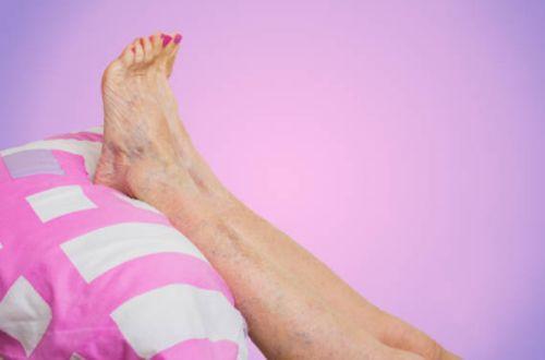 las piernas en alto para disminuir la hinchazon